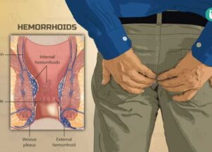 How to Get Rid Of Your Piles And Constipation
